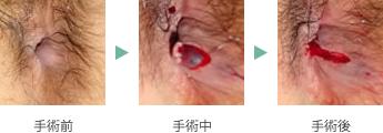の 手術 痔